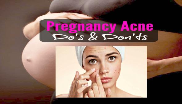 Pregnancy Acne – Do's & Don'ts