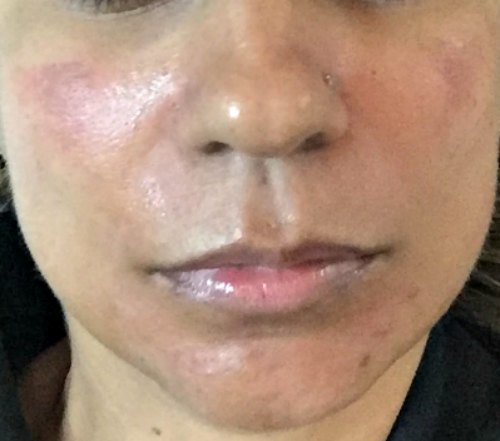 PICO Toning Discovery PICO Melasma Pigmentation Dark Spots Tattoo Removal Prive Aesthetics Singapore Laser Treatment Facial